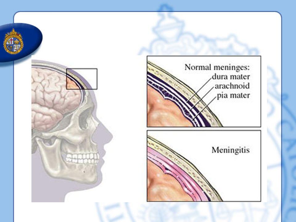 El tratamiento precoz con dexametasona mejora el resultado en adultos con meningitis bacteriana aguda Conclusiones