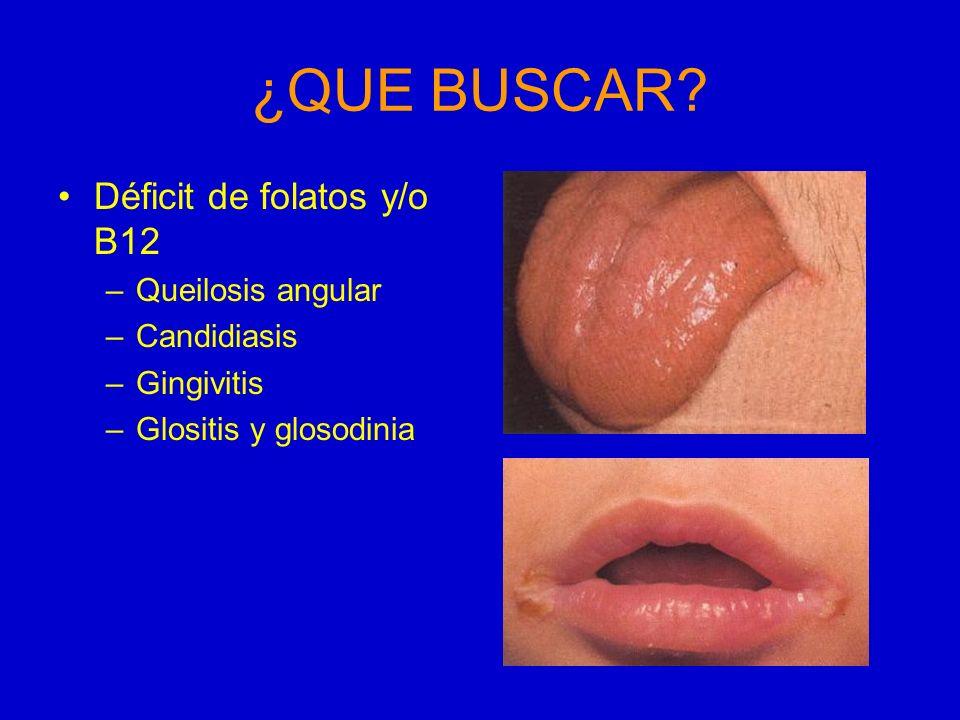 ¿QUE BUSCAR? Déficit de folatos y/o B12 –Queilosis angular –Candidiasis –Gingivitis –Glositis y glosodinia