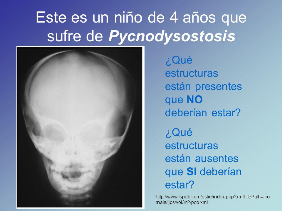 Repasemos las estructuras óseas de cara y cranium que aprendimos utilizando los modelos de cráneo, para poder responder a estas preguntas