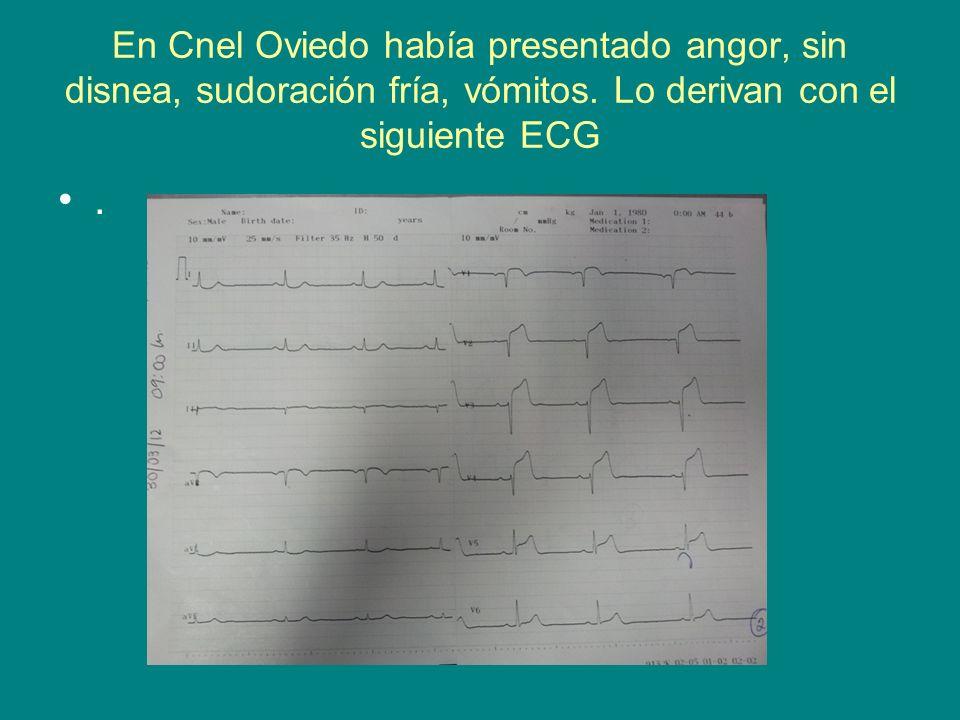 En Cnel Oviedo había presentado angor, sin disnea, sudoración fría, vómitos. Lo derivan con el siguiente ECG.