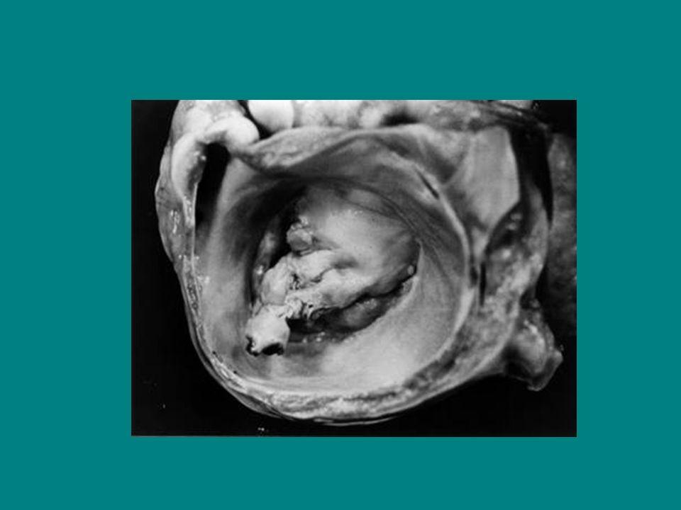 Alteraciones músculos papilares Enfermedad coronaria (disfunción o ruptura) Disfunción VI global aguda Enfermedad infiltrativa (amiloidosis, sarcoidosis) Trauma Alteraciones de prótesis VM Perforación de valvular Porcina (EI) Degeneración válvula porcina Falla mecánica Inmovilización del disco o la bola de la prótesis mecánica Alteraciones anatómicas