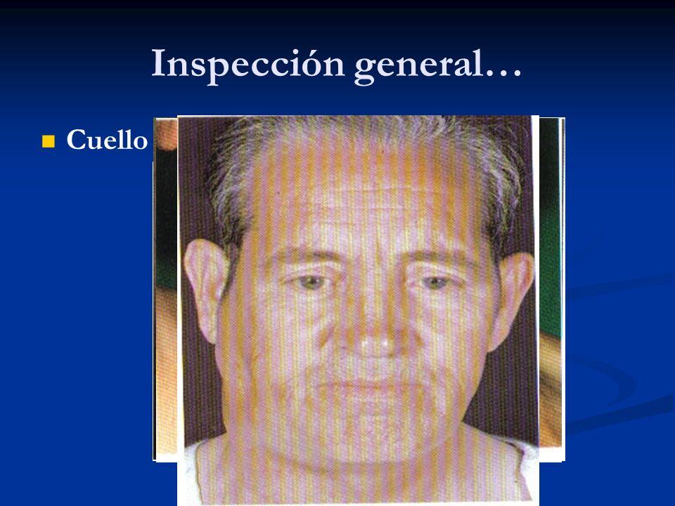 Inspección general… Cuello