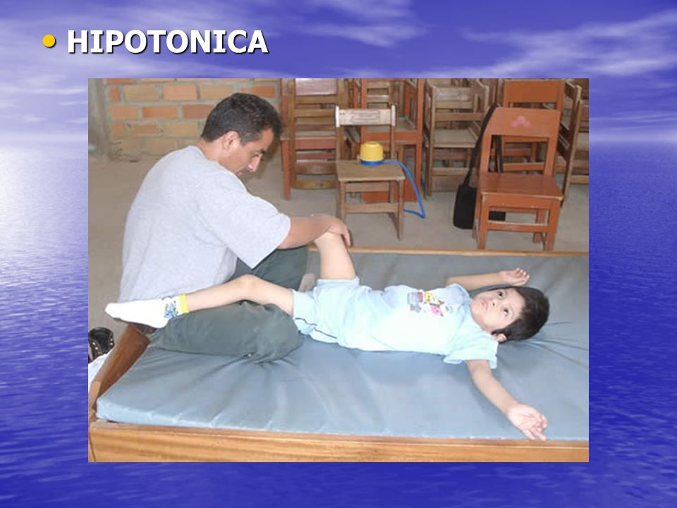 HIPOTONICA HIPOTONICA