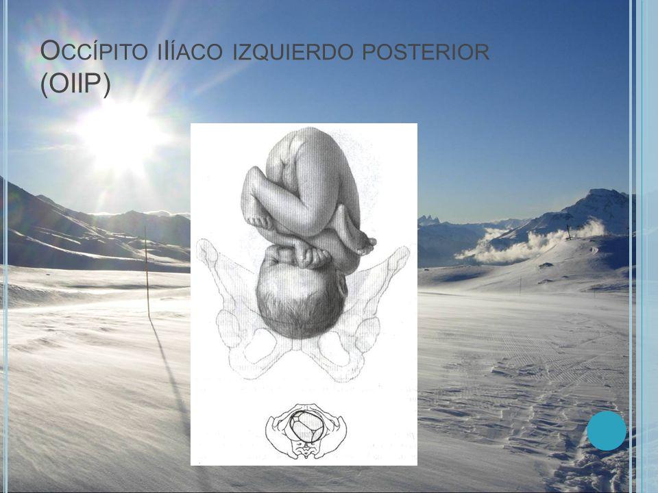 O CCÍPITO I I ÍACO IZQUIERDO POSTERIOR (OIIP)