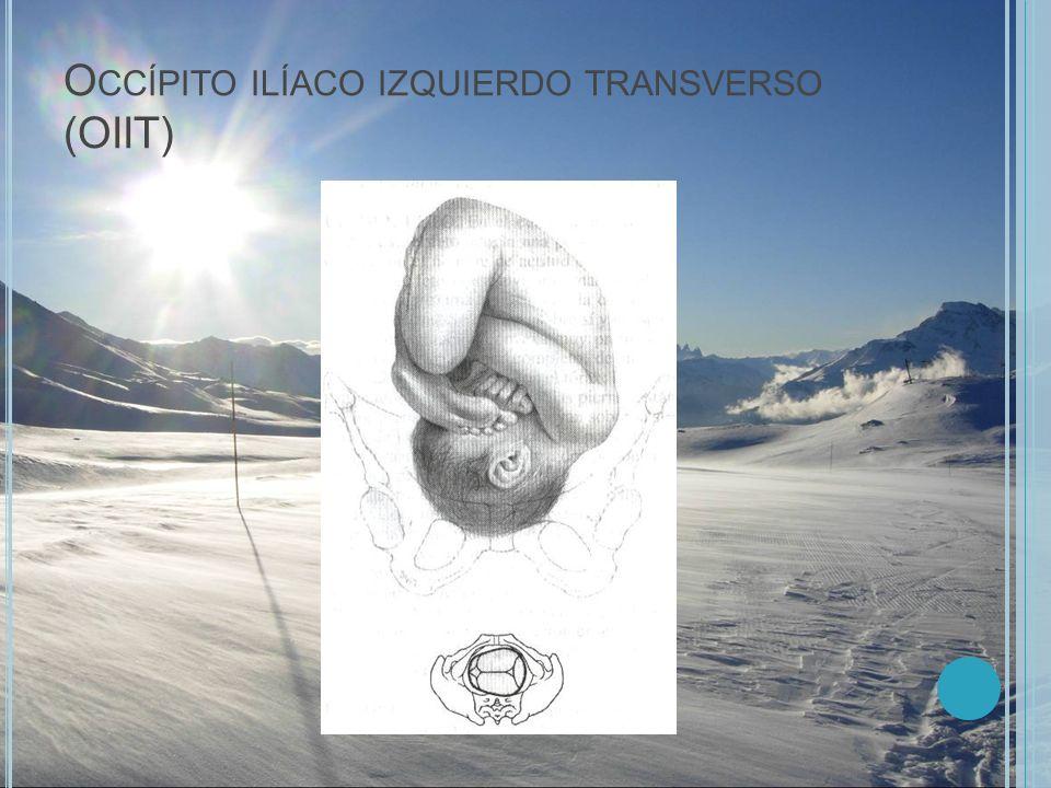 O CCÍPITO ILÍACO IZQUIERDO TRANSVERSO (OIIT)