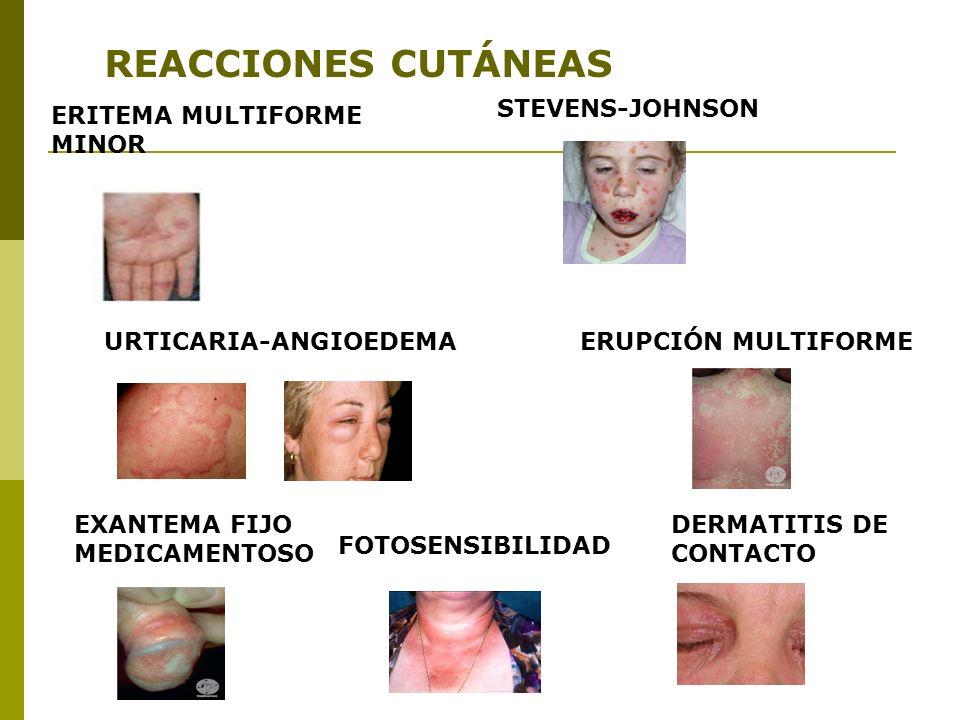 URTICARIA-ANGIOEDEMA EXANTEMA FIJO MEDICAMENTOSO FOTOSENSIBILIDAD DERMATITIS DE CONTACTO ERUPCIÓN MULTIFORME ERITEMA MULTIFORME MINOR STEVENS-JOHNSON