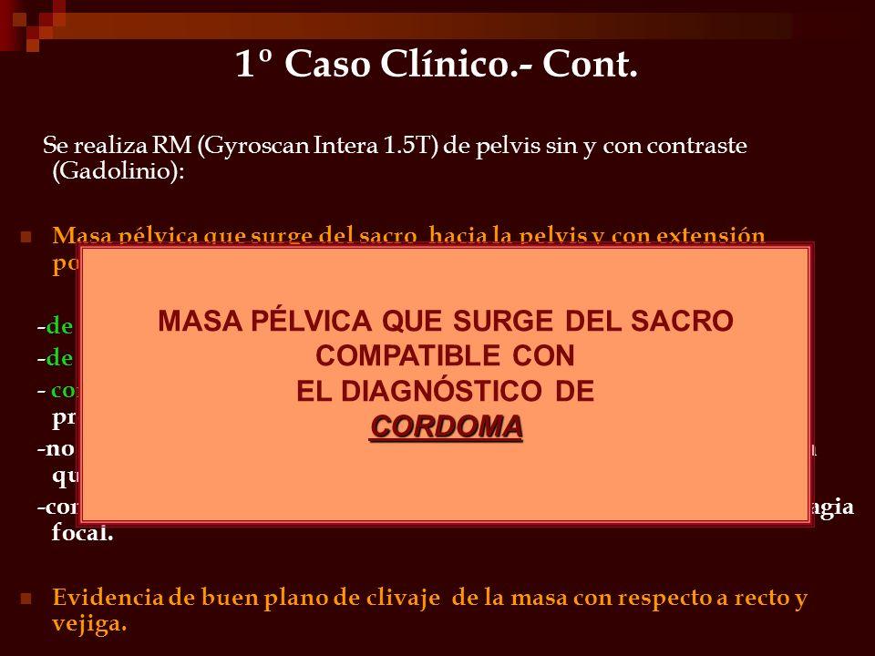 1º Caso Clínico.- Cont. Se realiza RM (Gyroscan Intera 1.5T) de pelvis sin y con contraste (Gadolinio): Masa pélvica que surge del sacro hacia la pelv