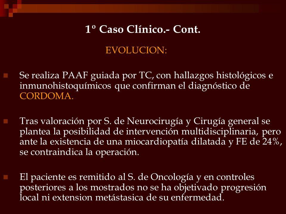 EVOLUCION: Se realiza PAAF guiada por TC, con hallazgos histológicos e inmunohistoquímicos que confirman el diagnóstico de CORDOMA. Tras valoración po