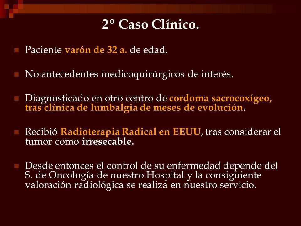 2º caso clínico.- Evidencia de lesión lítica, que sigue un patrón permeativo, con bordes fetoneados, altamente destructiva que compromete al menos la mitad inferior del sacro y el coxis.