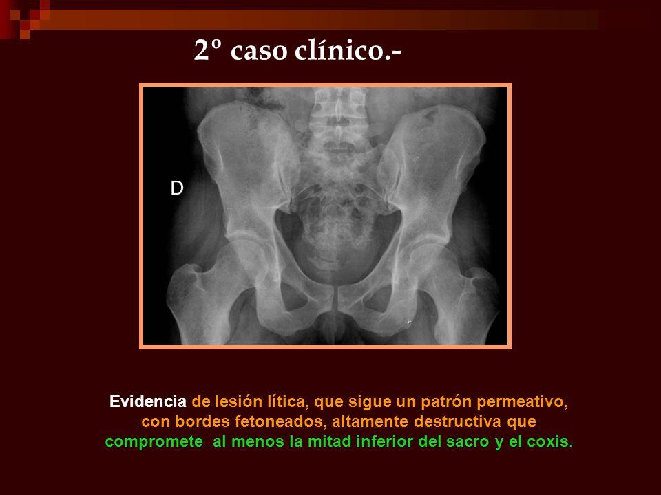 2º caso clínico.- Evidencia de lesión lítica, que sigue un patrón permeativo, con bordes fetoneados, altamente destructiva que compromete al menos la