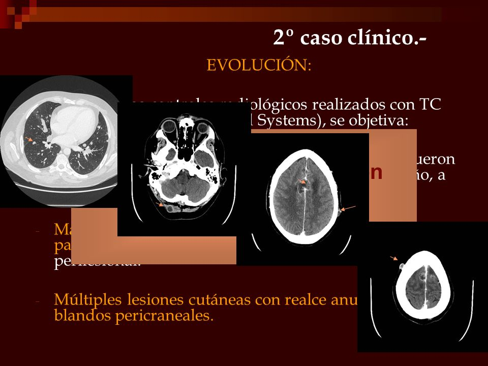 2º caso clínico.- EVOLUCIÓN: En próximos controles radiológicos realizados con TC multidetector (G.E. Medical Systems), se objetiva: - Aparición de mú
