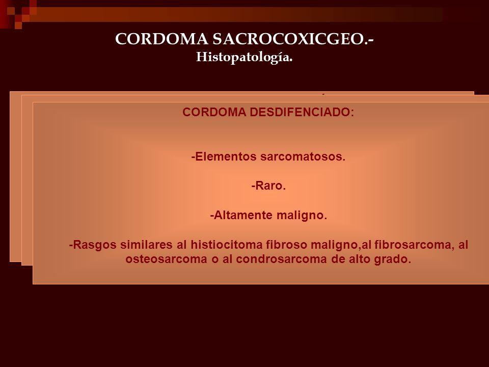 CORDOMA SACROCOXICGEO.- Histopatología. Importante variaciones en su aspecto histológico en relación con el grado de diferenciación y extensión de la