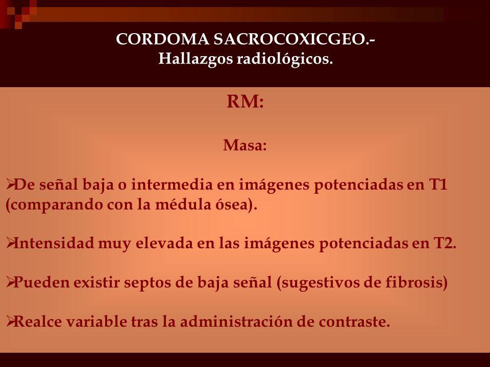 CORDOMA SACROCOXICGEO.- Hallazgos radiológicos. Radiología simple: Lesión altamente destructiva, lítica y expansiva de bordes festoneados/irregulares