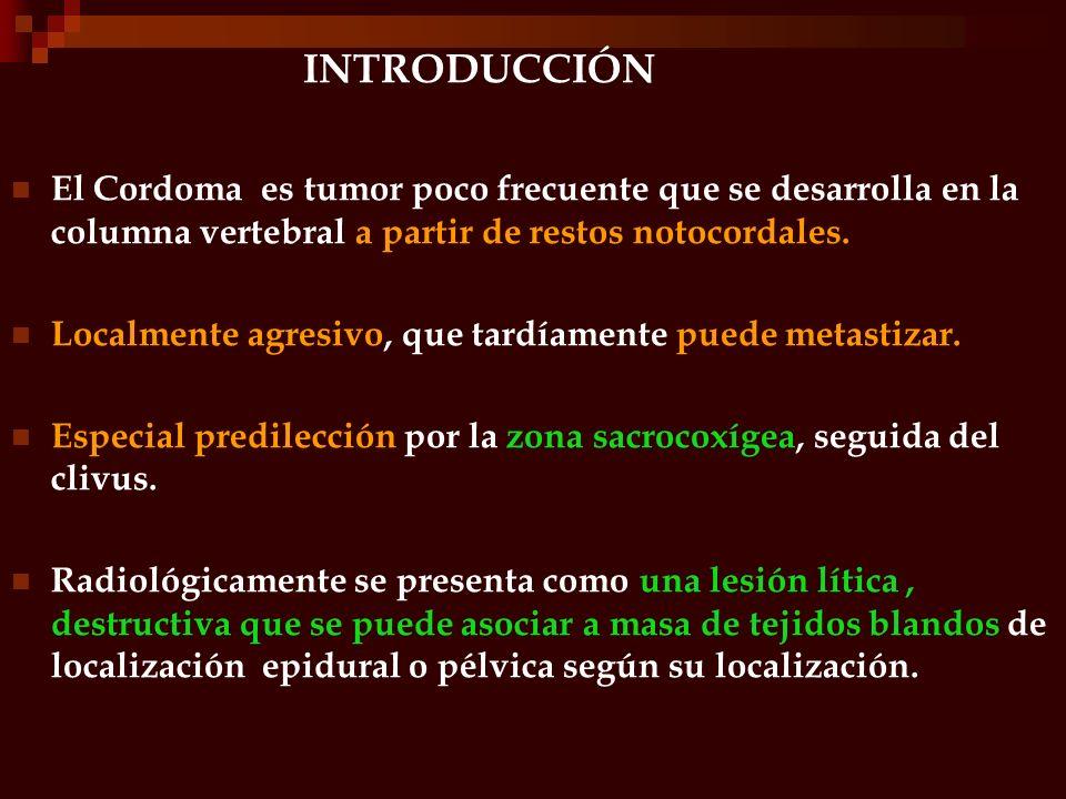 INTRODUCCIÓN El Cordoma es tumor poco frecuente que se desarrolla en la columna vertebral a partir de restos notocordales. Localmente agresivo, que ta
