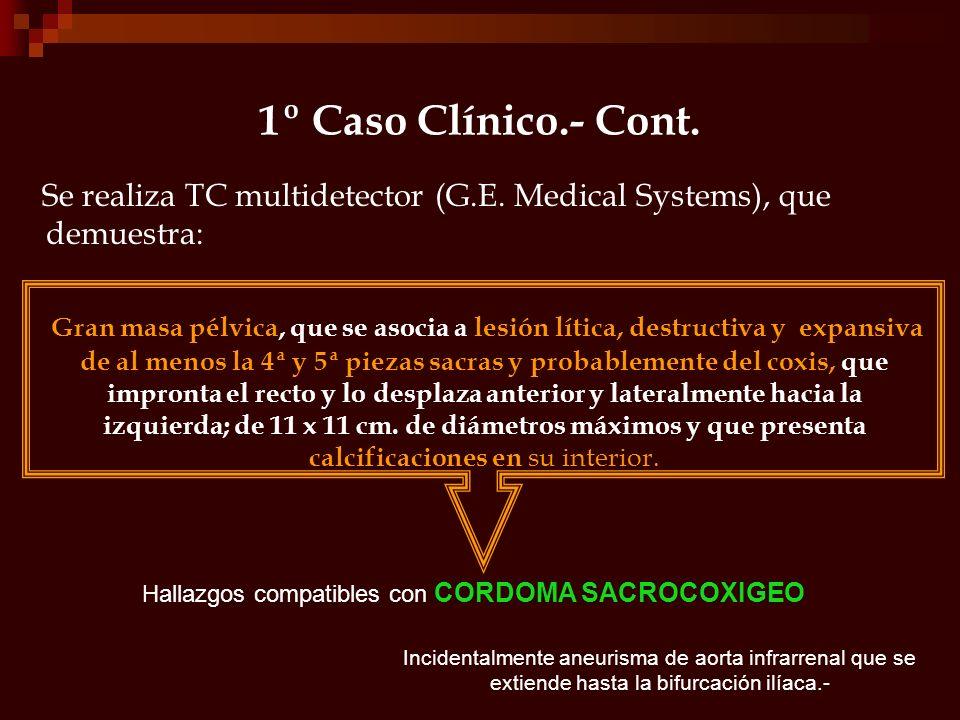 1º Caso Clínico.- Cont. Se realiza TC multidetector (G.E. Medical Systems), que demuestra: Gran masa pélvica, que se asocia a lesión lítica, destructi