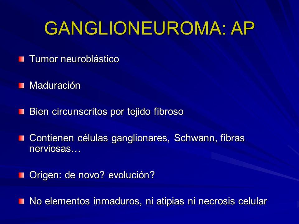 GANGLIONEUROMA: AP Tumor neuroblástico Maduración Bien circunscritos por tejido fibroso Contienen células ganglionares, Schwann, fibras nerviosas… Ori