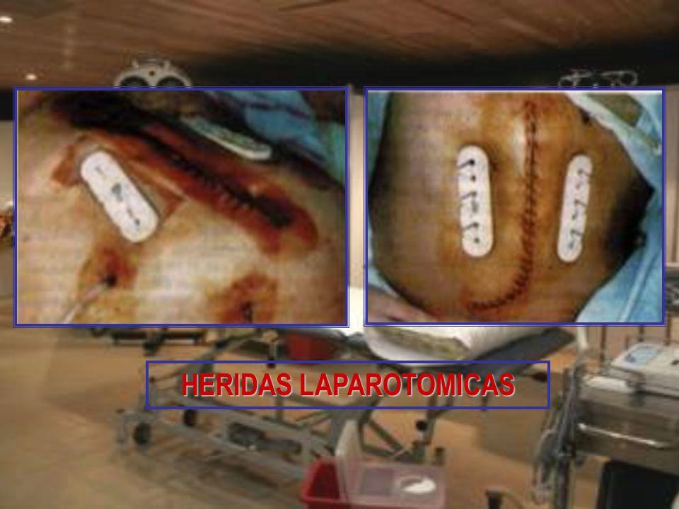 HERIDAS LAPAROTOMICAS
