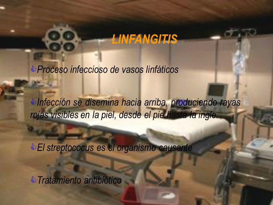 LINFANGITIS Proceso infeccioso de vasos linfáticos Infección se disemina hacia arriba, produciendo rayas rojas visibles en la piel, desde el pie hasta
