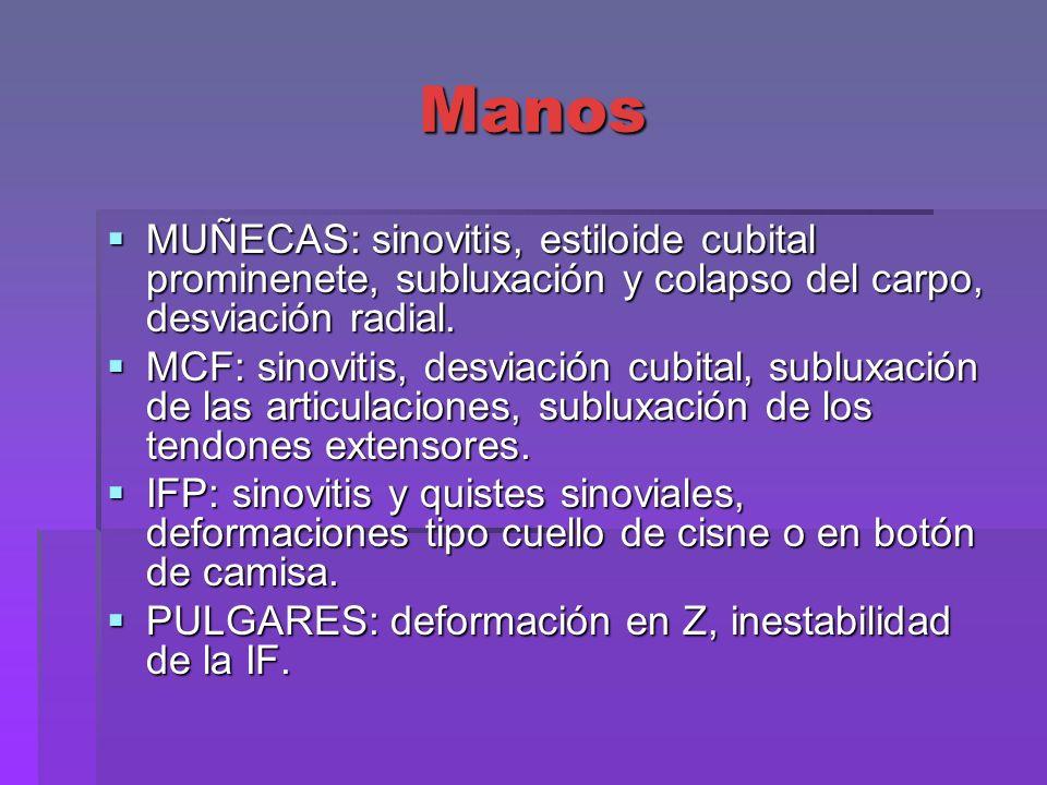 Manos MUÑECAS: sinovitis, estiloide cubital prominenete, subluxación y colapso del carpo, desviación radial. MUÑECAS: sinovitis, estiloide cubital pro