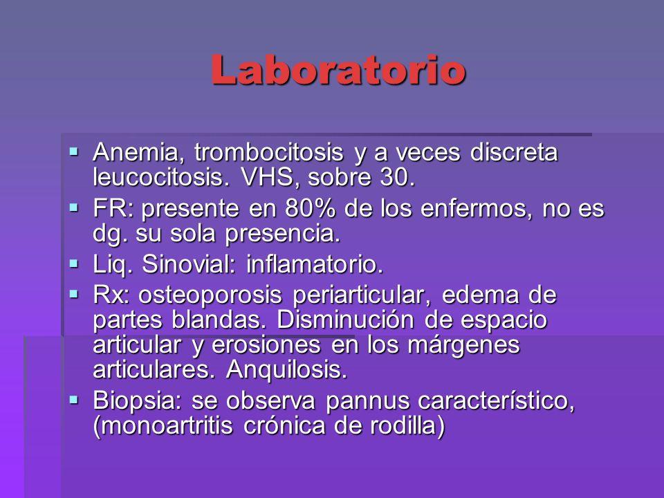 Laboratorio Anemia, trombocitosis y a veces discreta leucocitosis. VHS, sobre 30. Anemia, trombocitosis y a veces discreta leucocitosis. VHS, sobre 30