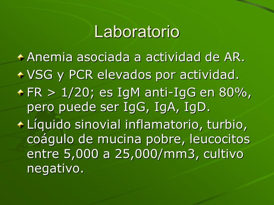 Laboratorio Anemia asociada a actividad de AR. VSG y PCR elevados por actividad. FR > 1/20; es IgM anti-IgG en 80%, pero puede ser IgG, IgA, IgD. Líqu