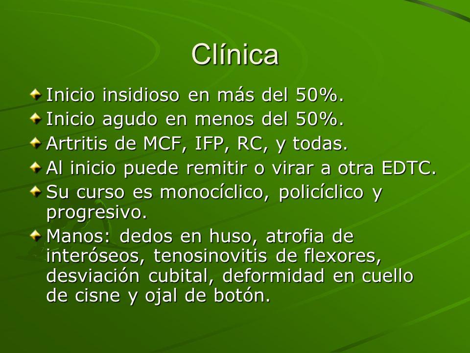 Clínica Inicio insidioso en más del 50%. Inicio agudo en menos del 50%. Artritis de MCF, IFP, RC, y todas. Al inicio puede remitir o virar a otra EDTC
