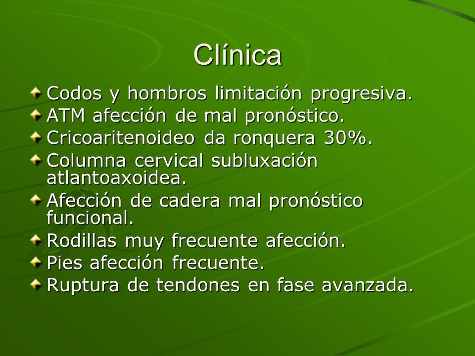 Clínica Codos y hombros limitación progresiva. ATM afección de mal pronóstico. Cricoaritenoideo da ronquera 30%. Columna cervical subluxación atlantoa