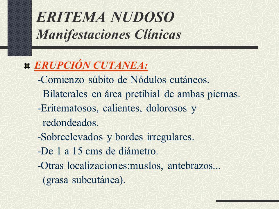 ERITEMA NUDOSO Manifestaciones Clínicas ERUPCIÓN CUTANEA: -Comienzo súbito de Nódulos cutáneos. Bilaterales en área pretibial de ambas piernas. -Erite