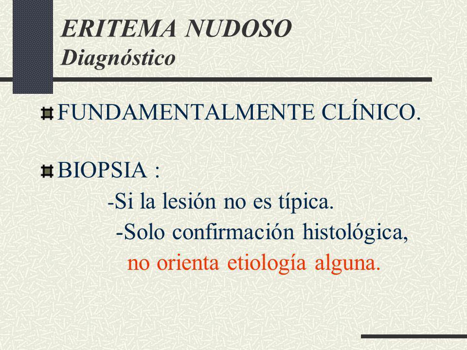 ERITEMA NUDOSO Diagnóstico FUNDAMENTALMENTE CLÍNICO. BIOPSIA : - Si la lesión no es típica. -Solo confirmación histológica, no orienta etiología algun