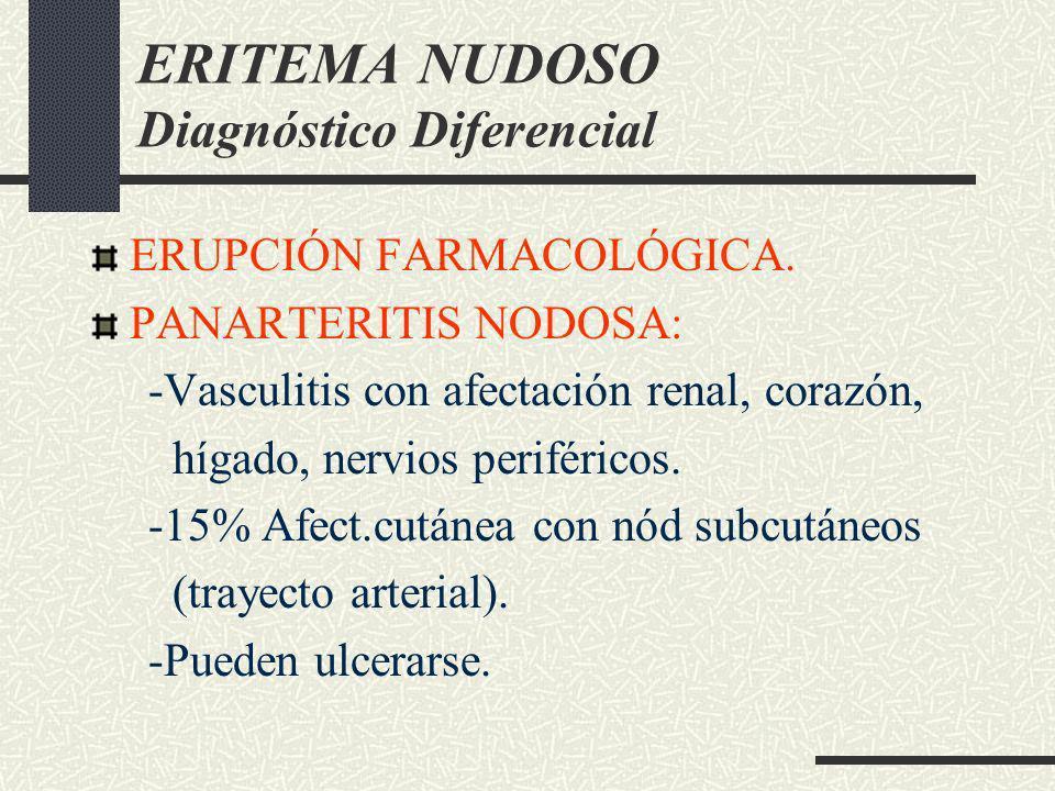 ERITEMA NUDOSO Diagnóstico Diferencial ERUPCIÓN FARMACOLÓGICA. PANARTERITIS NODOSA: -Vasculitis con afectación renal, corazón, hígado, nervios perifér