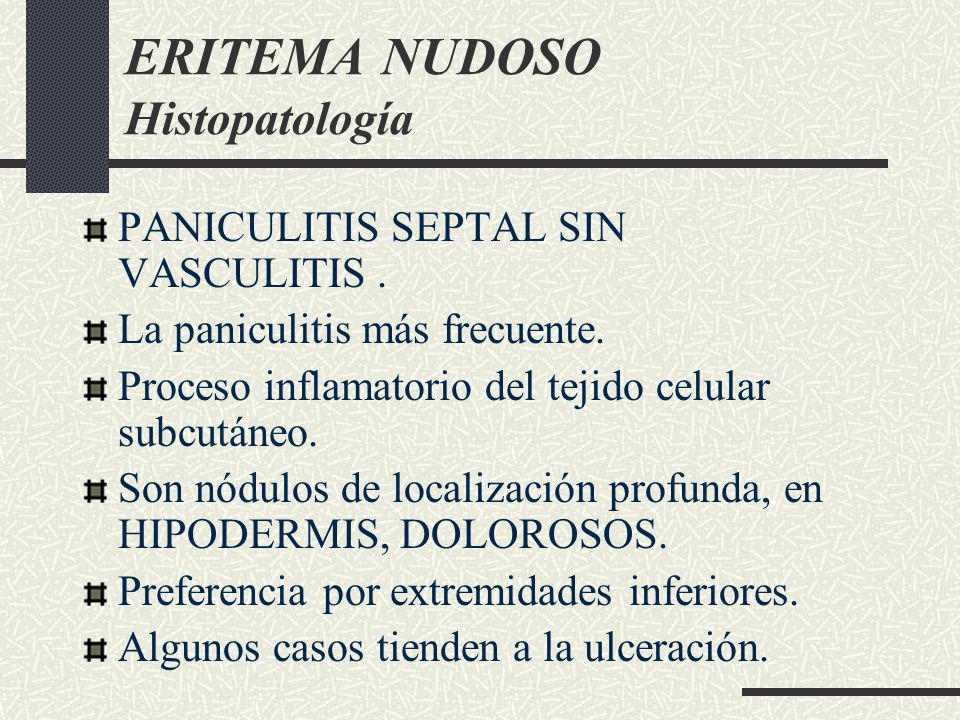 ERITEMA NUDOSO Histopatología PANICULITIS SEPTAL SIN VASCULITIS. La paniculitis más frecuente. Proceso inflamatorio del tejido celular subcutáneo. Son