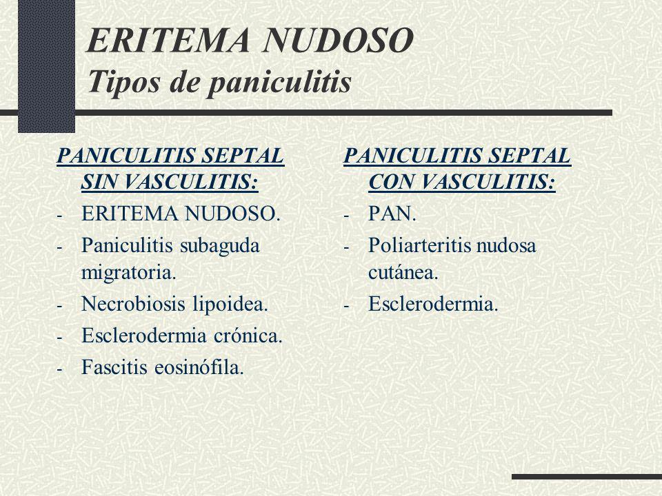 ERITEMA NUDOSO Tipos de paniculitis PANICULITIS SEPTAL SIN VASCULITIS: - ERITEMA NUDOSO. - Paniculitis subaguda migratoria. - Necrobiosis lipoidea. -