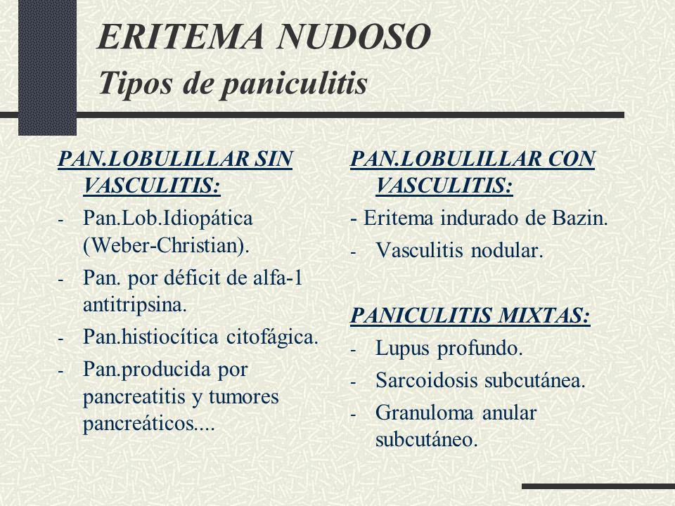 ERITEMA NUDOSO Tipos de paniculitis PAN.LOBULILLAR SIN VASCULITIS: - Pan.Lob.Idiopática (Weber-Christian). - Pan. por déficit de alfa-1 antitripsina.