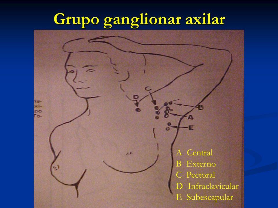 Grupo ganglionar axilar A Central B Externo C Pectoral D Infraclavicular E Subescapular