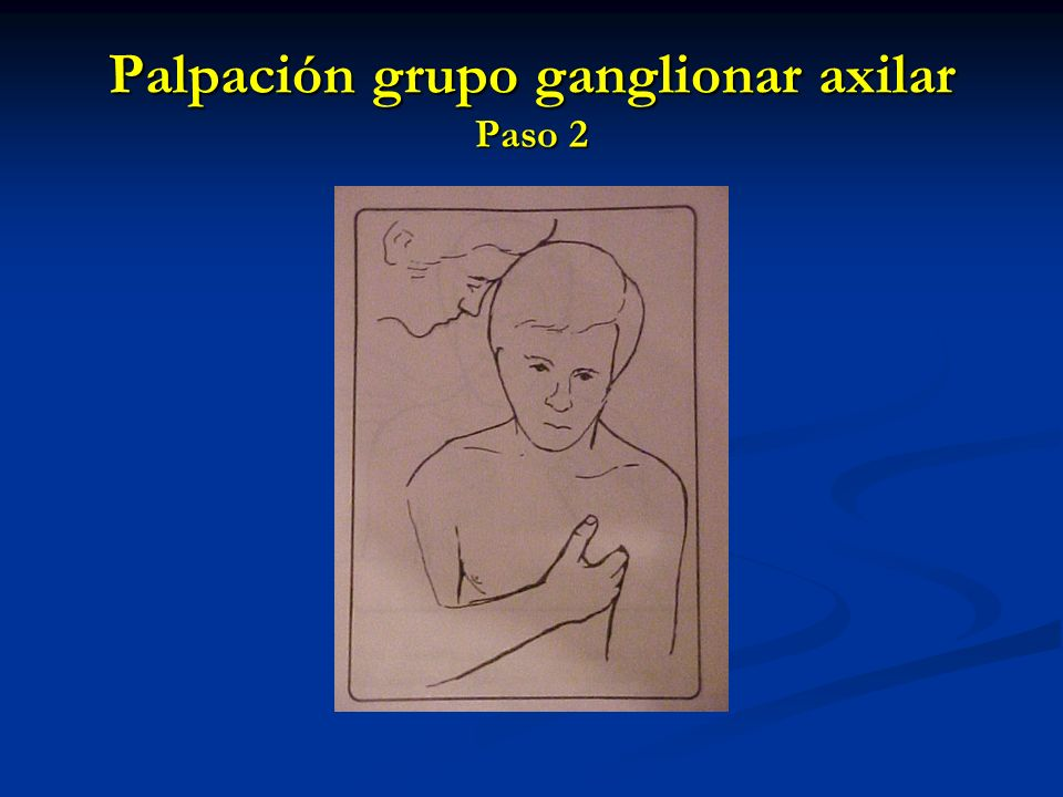 Palpación grupo ganglionar axilar Paso 2