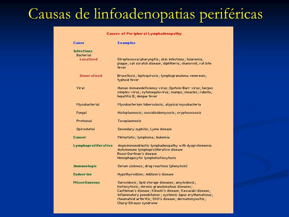 Sistema Linfoganglionar Causas de linfoadenopatias periféricas