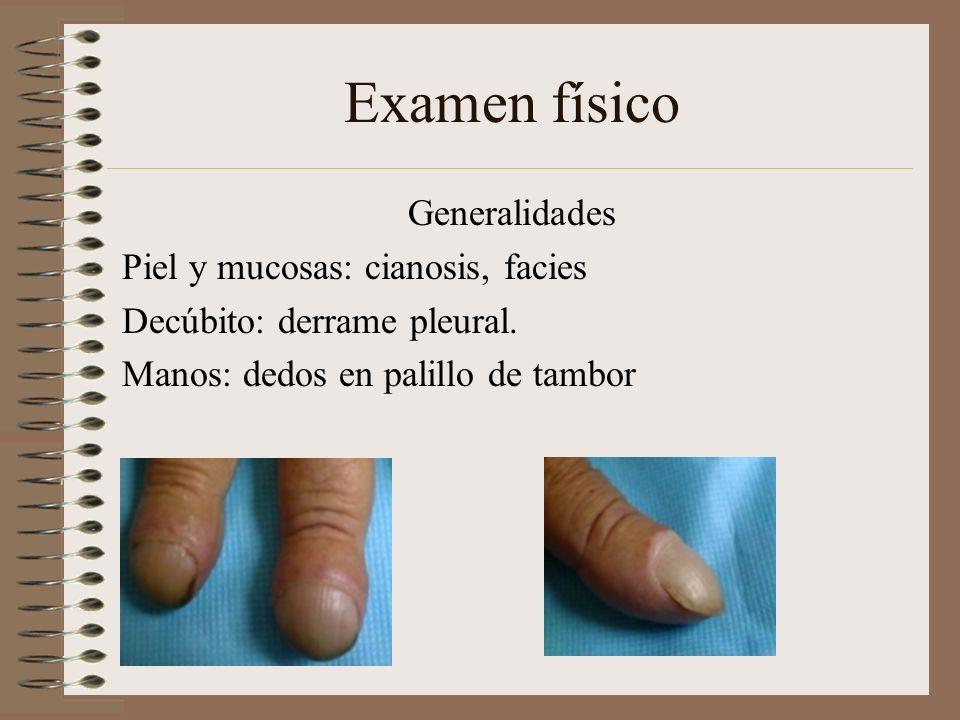 Examen físico Generalidades Piel y mucosas: cianosis, facies Decúbito: derrame pleural. Manos: dedos en palillo de tambor