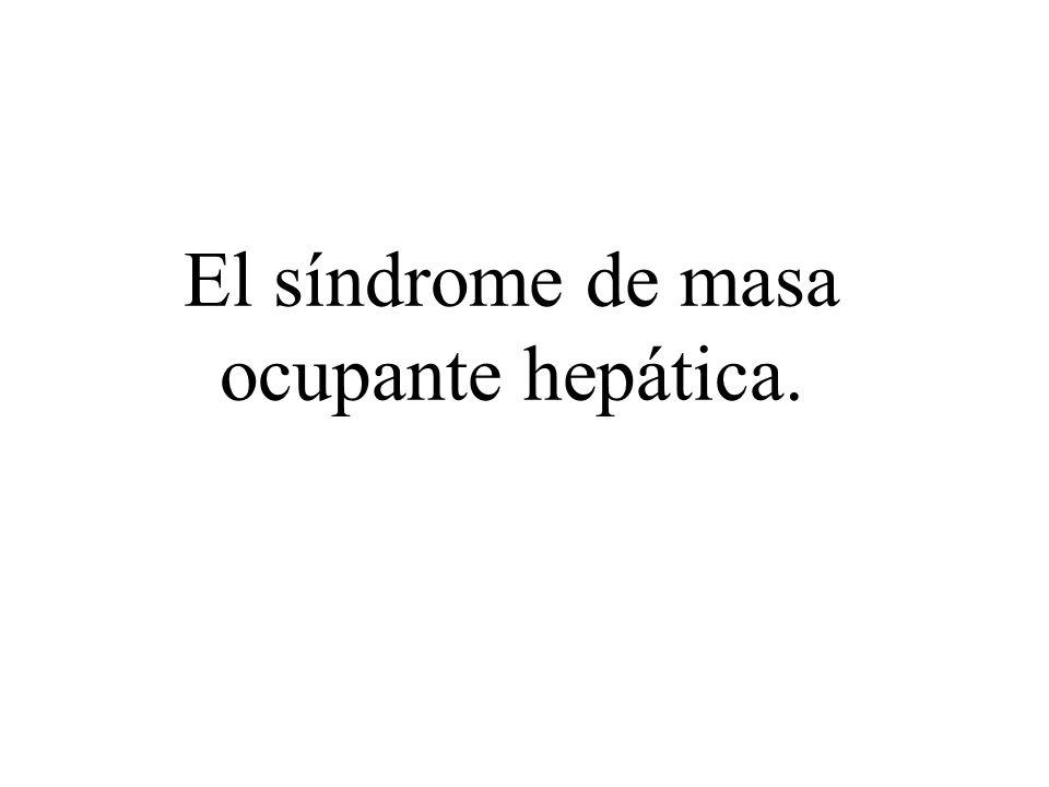 El síndrome de masa ocupante hepática.
