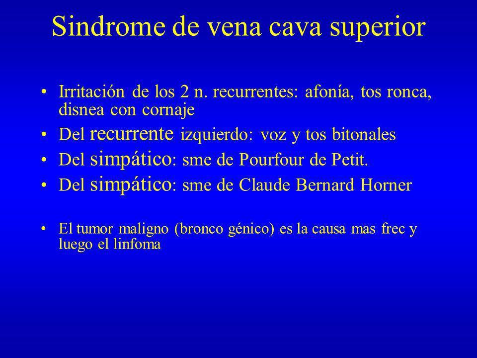 Sindrome de vena cava superior Irritación de los 2 n. recurrentes: afonía, tos ronca, disnea con cornaje Del recurrente izquierdo: voz y tos bitonales