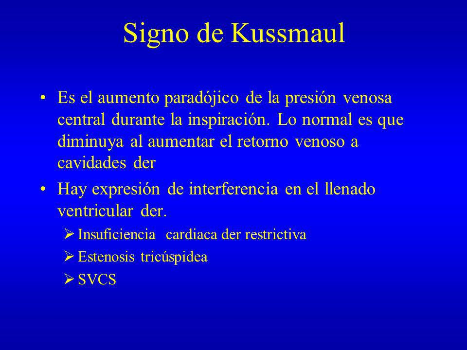 Signo de Kussmaul Es el aumento paradójico de la presión venosa central durante la inspiración. Lo normal es que diminuya al aumentar el retorno venos