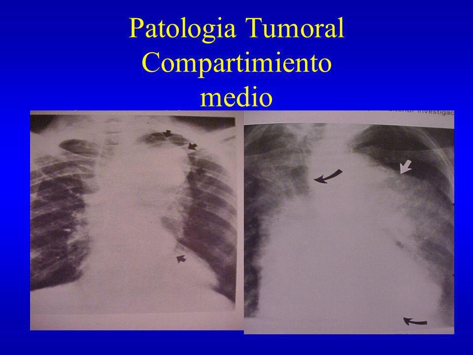 Compartimiento Posterior Vértebra Aorta descendente Esófago Conducto toráxico Acigos y hemiacigos Nervio vago porción inferior Cadena ganglionar simpática Ganglios linfáticos mediastinales posteriores