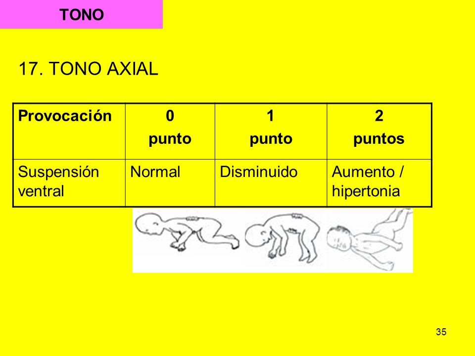 35 TONO 17. TONO AXIAL Provocación0 punto 1 punto 2 puntos Suspensión ventral NormalDisminuidoAumento / hipertonia