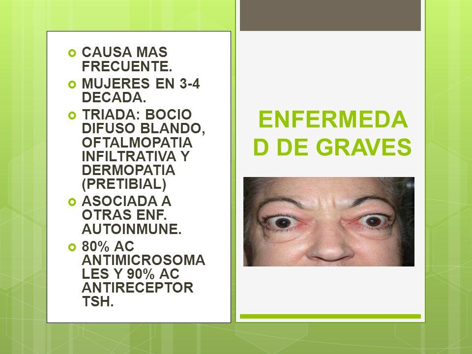 ENFERMEDA D DE GRAVES CAUSA MAS FRECUENTE. MUJERES EN 3-4 DECADA. TRIADA: BOCIO DIFUSO BLANDO, OFTALMOPATIA INFILTRATIVA Y DERMOPATIA (PRETIBIAL) ASOC