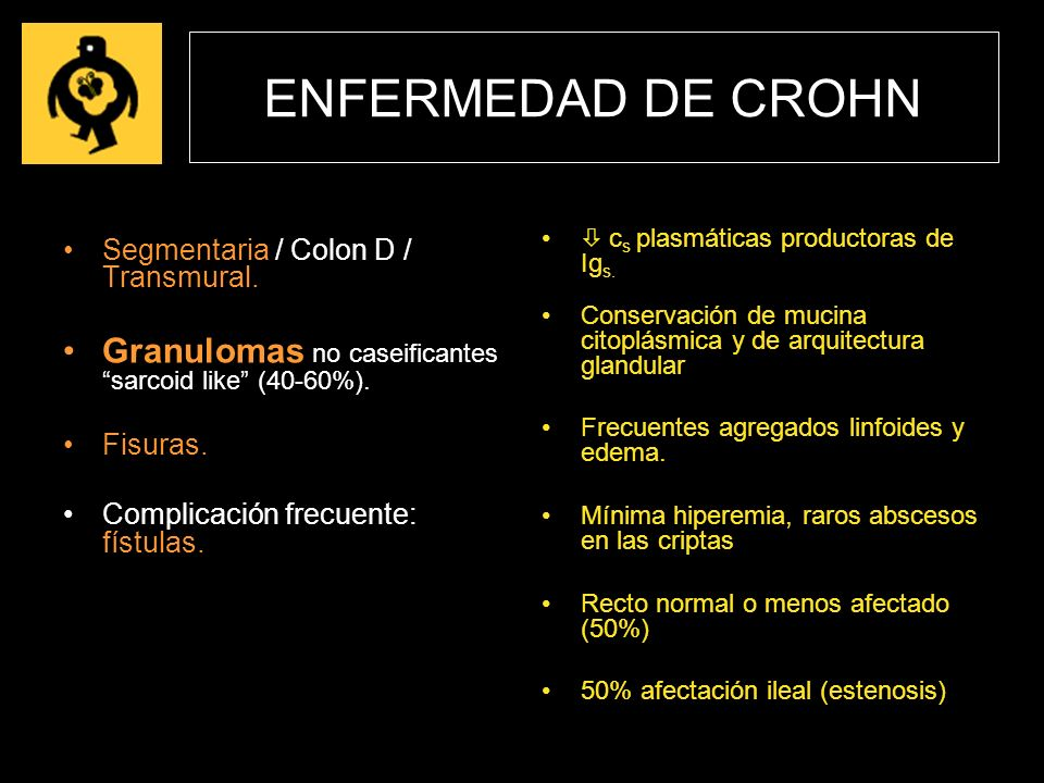 ENFERMEDAD DE CROHN Segmentaria / Colon D / Transmural. Granulomas no caseificantes sarcoid like (40-60%). Fisuras. Complicación frecuente: fístulas.
