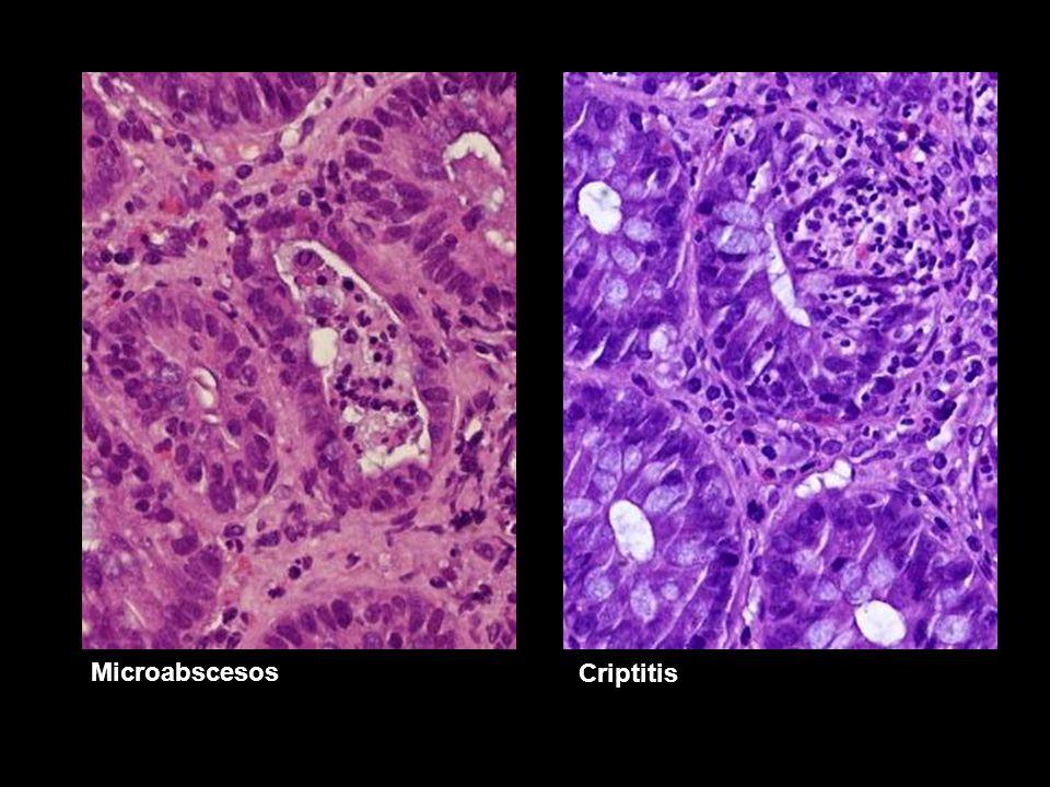 Microabscesos Criptitis