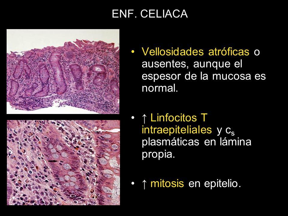 ENF. CELIACA Vellosidades atróficas o ausentes, aunque el espesor de la mucosa es normal. Linfocitos T intraepiteliales y c s plasmáticas en lámina pr
