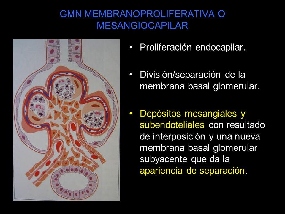 GMN MEMBRANOPROLIFERATIVA O MESANGIOCAPILAR Proliferación endocapilar. División/separación de la membrana basal glomerular. Depósitos mesangiales y su