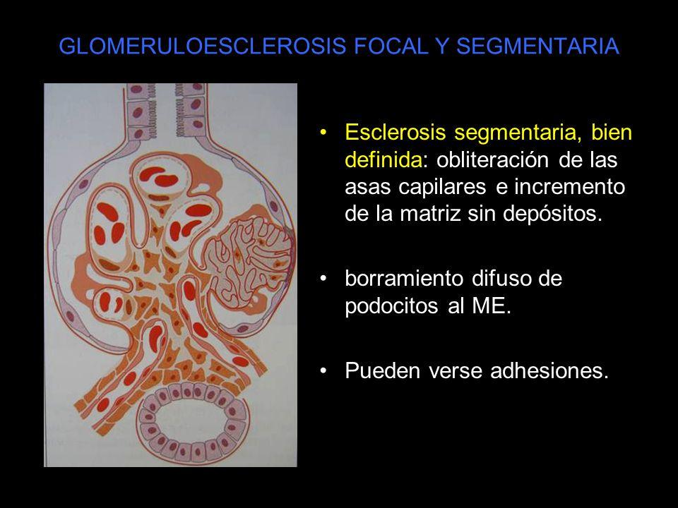 GLOMERULOESCLEROSIS FOCAL Y SEGMENTARIA Esclerosis segmentaria, bien definida: obliteración de las asas capilares e incremento de la matriz sin depósi