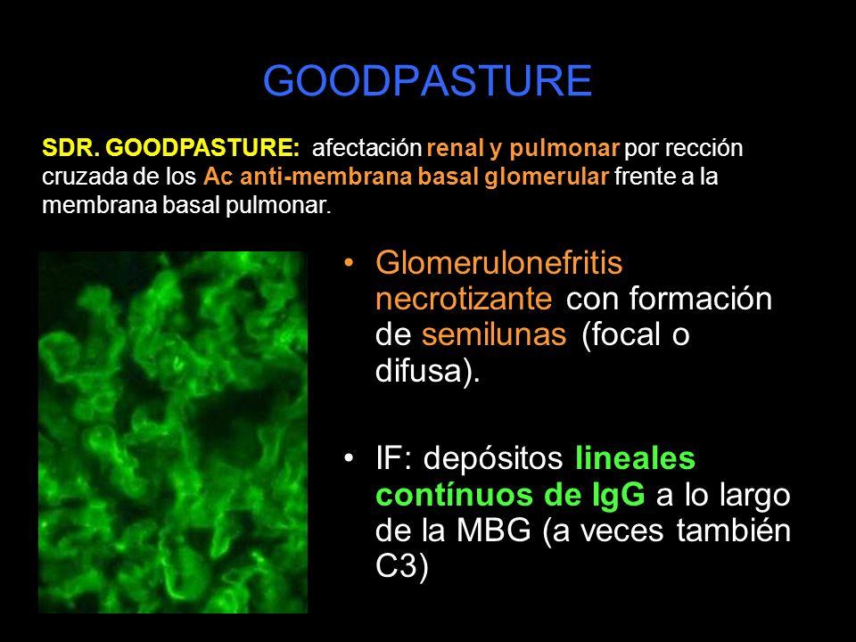 GOODPASTURE Glomerulonefritis necrotizante con formación de semilunas (focal o difusa). IF: depósitos lineales contínuos de IgG a lo largo de la MBG (