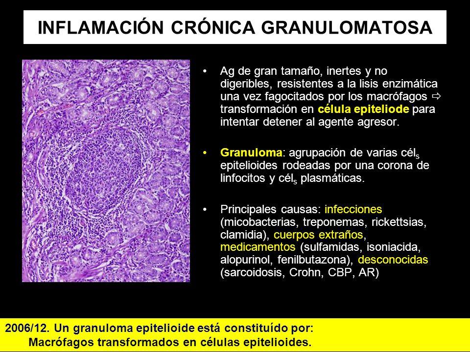 INFLAMACIÓN CRÓNICA GRANULOMATOSA Ag de gran tamaño, inertes y no digeribles, resistentes a la lisis enzimática una vez fagocitados por los macrófagos
